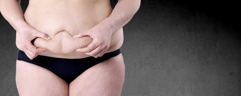 Abdominoplastie Lille