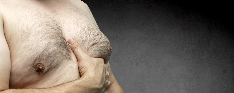 Gynecomastie par Cryolipolyse Lille