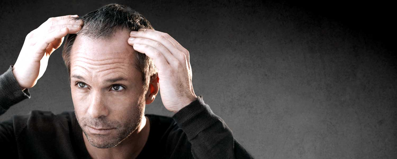 Greffe de cheveux FUT Lille