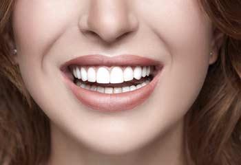 Lèvres redessinées Lille Clinique Clemenceau