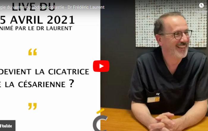 La chirurgie du ventre expliquée en vidéo - Clinique Clémenceau à Lille et Arras