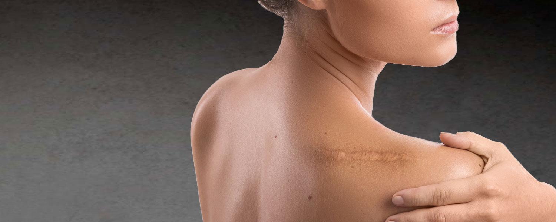 Effacer ses cicatrices à la Clinique Clemenceau à Lille