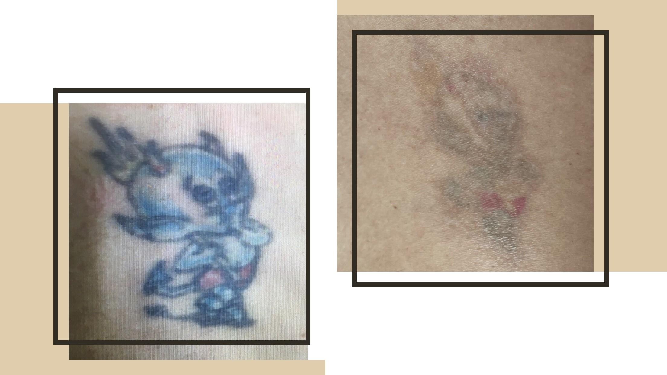 Effacer tatouage à Lille et Arras - Clinique Clemenceau