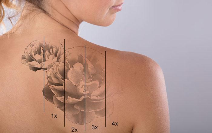 Retrait tatouage laser à Lille et arras - Clinique Clemenceau