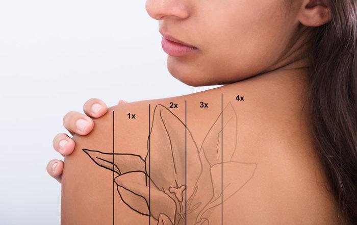 Enlever un tatouage au laser à la Clinique Clemenceau à Lille