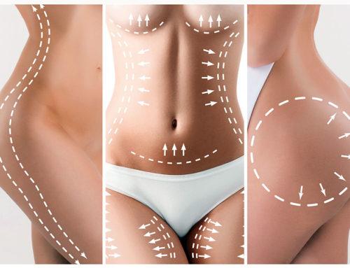 Le lipofilling, une technique de chirurgie esthétique 100% naturelle